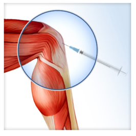 treating-arthritis-with-prp