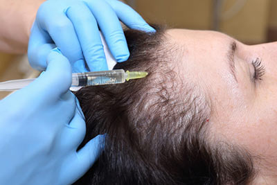 hair_loss_prp_therapy