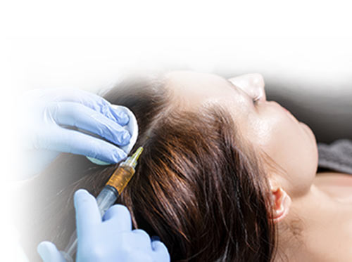 hair_loss_prp_therapy_new_york